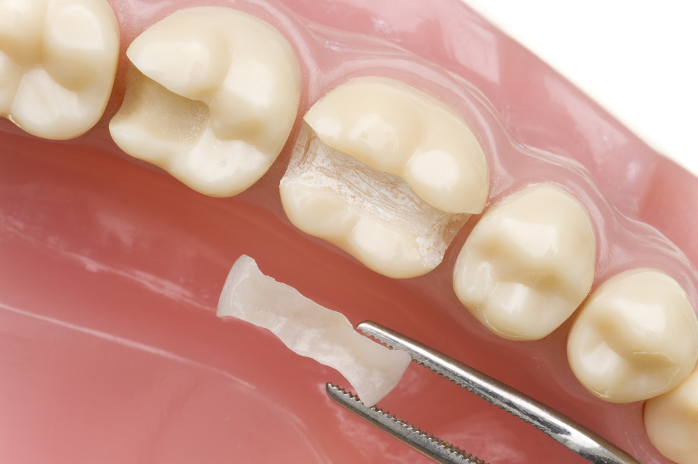 Fillings Thailand Dentists