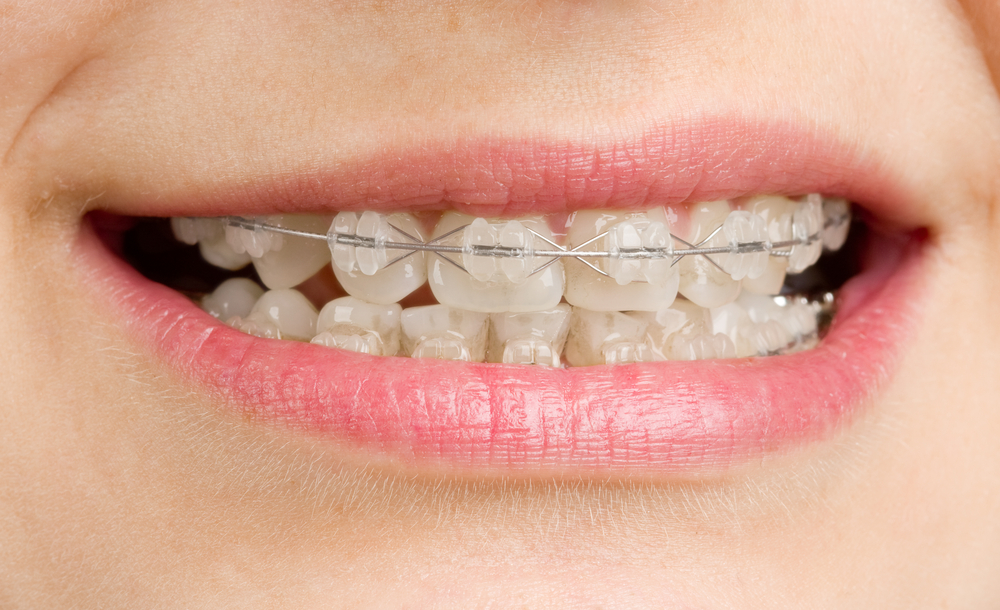 Teeth Straightening Without Braces Thailand Dentists